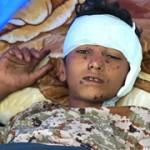 S1_Yemen